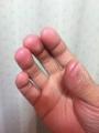 親指に弦の跡