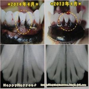 前歯5回目3
