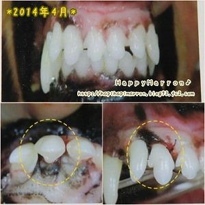 前歯5回目2