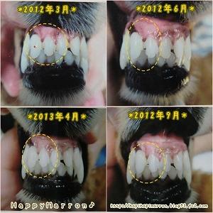 前歯5回目1