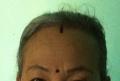 IMG_1014ka髪の生え際の印