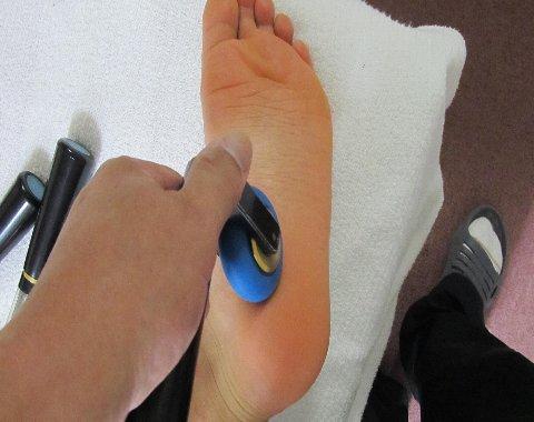 足底腱膜炎初期
