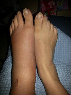 浮腫んでしまった足
