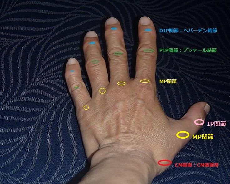手の関節と変形