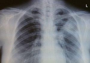 肺 レントゲン
