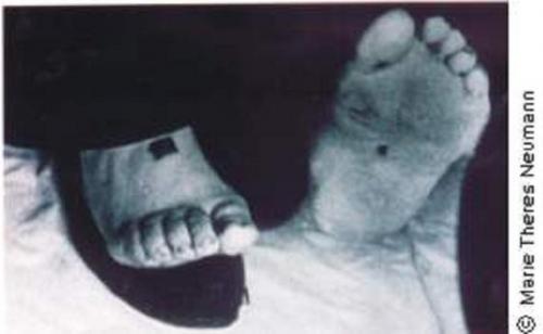 聖痕(テレーゼの足)image