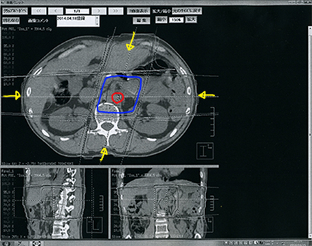 放射線CT