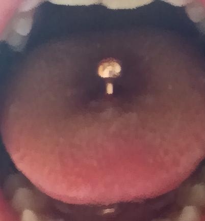 舌 ピ 安定