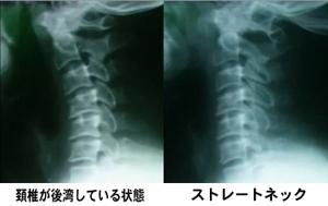 straight_2.jpg