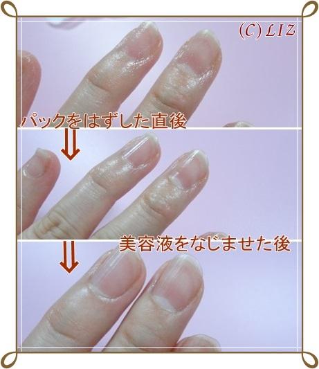 【ココスター】5フィンガーネイルパック